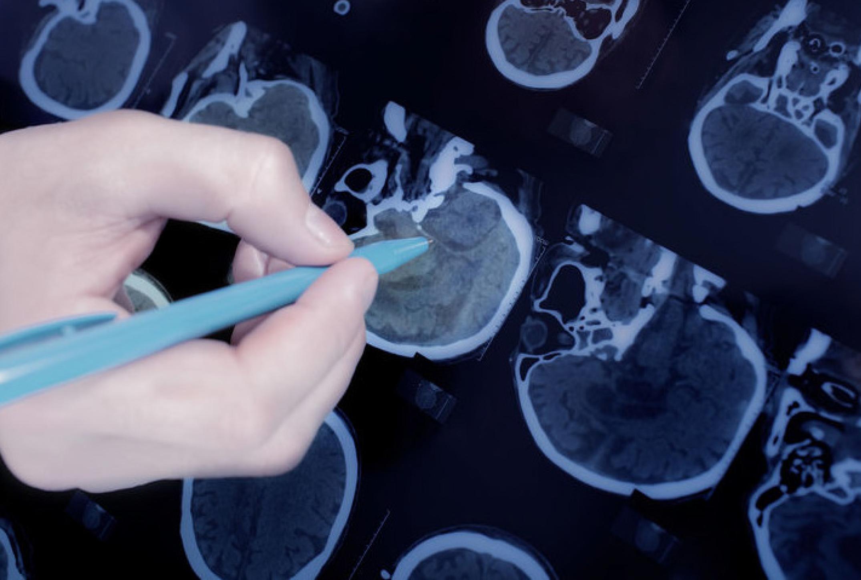 Il trattamento dell'epilessia in età pediatrica – Linee Guida